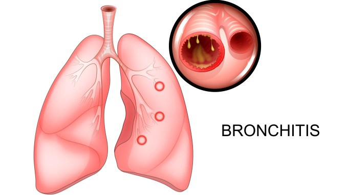 Bronchitis-beath-site